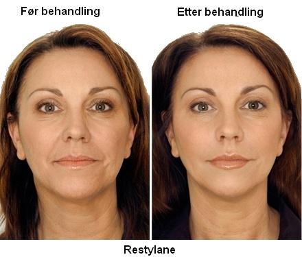 Restylane før og etter